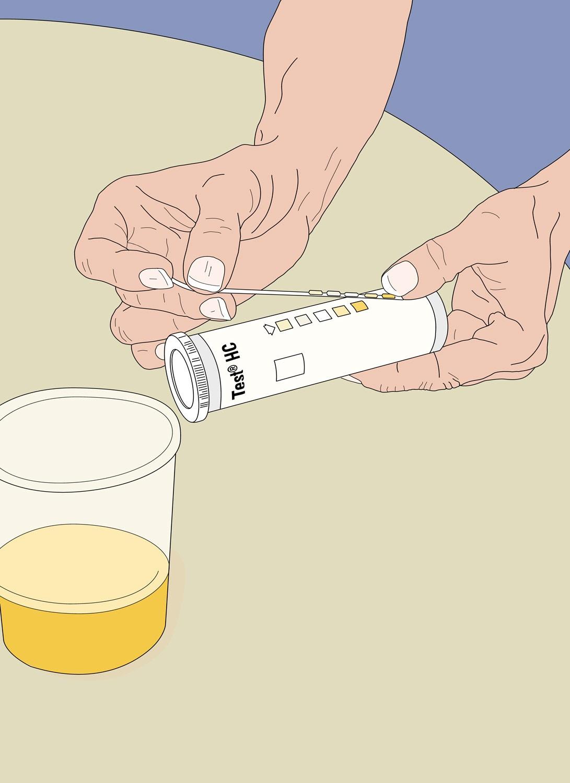 Blasenentzündungs-Check